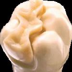dental-inlay-150x150