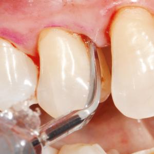 stomatologie Stomatologie Râmnicu Sărat – Dr. State PARODONTOLOGIE e1580046037488 300x300