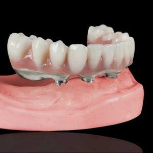 stomatologie Stomatologie Râmnicu Sărat – Dr. State PROTETICA e1580046072656 300x300