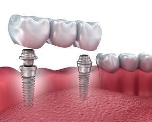 Implant Râmnicu Sărat - Stomatologie Dr. State proteza pe implanturi Proteza pe implanturi Implant R  mnicu S  rat Stomatologie Dr