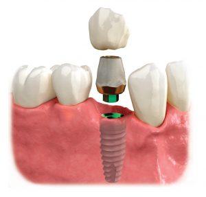 Implantologie Râmnicu Sărat implantologie râmnicu sărat Implantologie Râmnicu Sărat Implantologie R  mnicu S  rat Stomatologie Dr