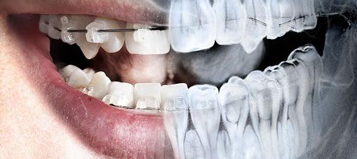 Radiologie dentară - Râmnicu Sărat radiologie dentară râmnicu sărat Radiologie dentară Râmnicu Sărat Radiologie dentara ramnicu sarat Dr State