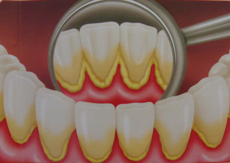 gingivita, drstate, stomatologie ramnicu sarat, stomatologie buzau, stomatologie focsani, Stomatologie, gingivita Gingivita despre, cauze, simptome, tratamente. gingivita