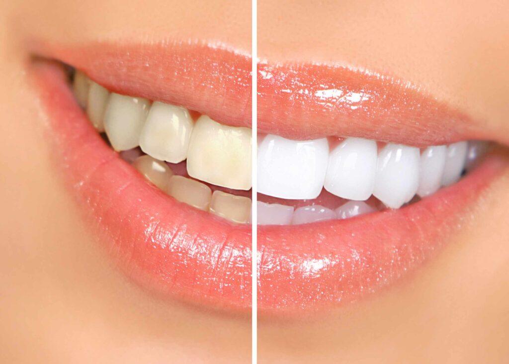 albirea dentară Albirea dentară – Soluții pentru o dantură strălucitoare Despre albirea dentara 1024x732