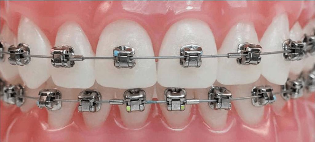 ORTODONTIE ortodontie ORTODONTIE – Estetic versus functional ortodontie 1024x461