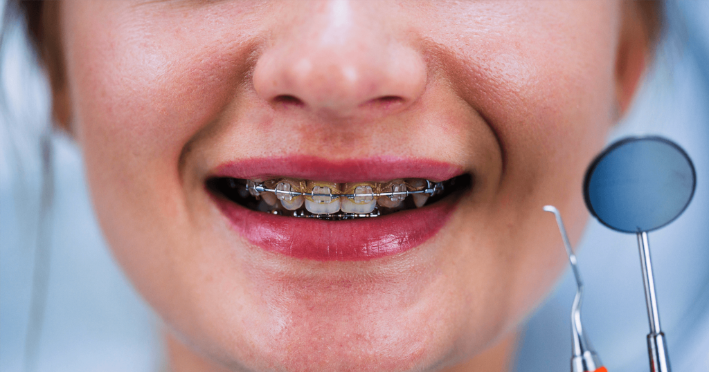 ORTODONTIE ortodontie ORTODONTIE – Estetic versus functional ortodontie dr state stomatologie ramnicu sarat 1024x538