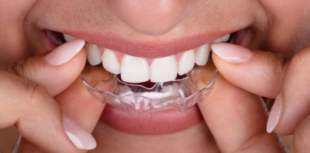 ortodontie ORTODONTIE – Estetic versus functional ortodontie stomatologie ramnicu sarat 1024x507